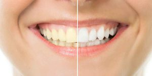 Cosmetic Dentistry- Powerful Technology Can Give You Your Best Smile